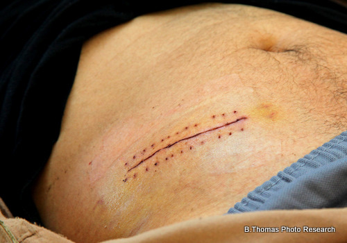 Stiches on a Stomach (medical stock photo)