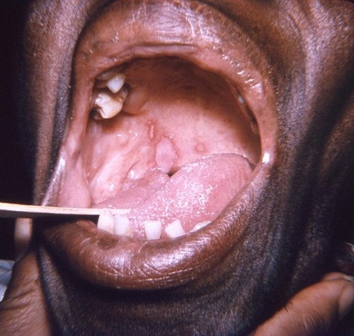 close-up of an elderly African-American female patient's oral cavity