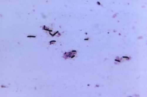 Gram-positive Bacteria Grown on a Chopped Meat Medium