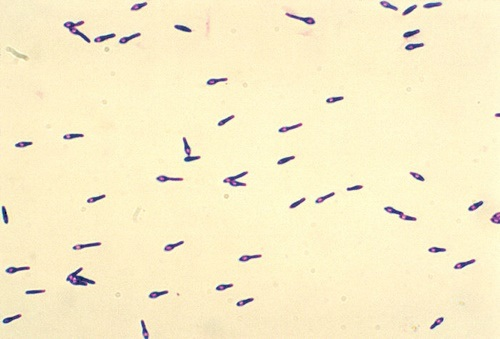 Clostridium botulinum type A