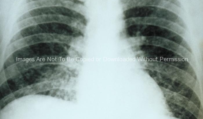 Chest X-Ray - diffuse pulmonary infiltration due to acute pulmonary histoplasmosis