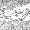 Ebola Photos - Ultrastructural Morphologic Changes in this Tissue Sample Isolate